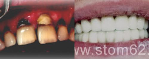 Сколько времени занимает лечение зуба